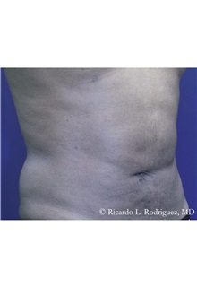 Liposuction After Photo by Ricardo Rodriguez, MD; Lutherville-Timonium, MD - Case 32631