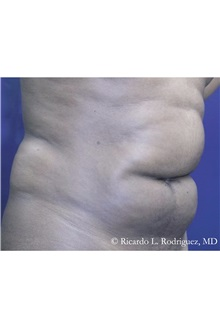 Liposuction Before Photo by Ricardo Rodriguez, MD; Lutherville-Timonium, MD - Case 32631