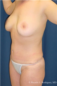 Liposuction After Photo by Ricardo Rodriguez, MD; Lutherville-Timonium, MD - Case 32632