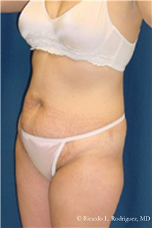 Liposuction Before Photo by Ricardo Rodriguez, MD; Lutherville-Timonium, MD - Case 32632