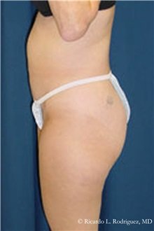 Liposuction Before Photo by Ricardo Rodriguez, MD; Lutherville-Timonium, MD - Case 32634