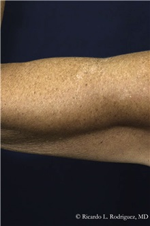 Liposuction After Photo by Ricardo Rodriguez, MD; Lutherville-Timonium, MD - Case 32635
