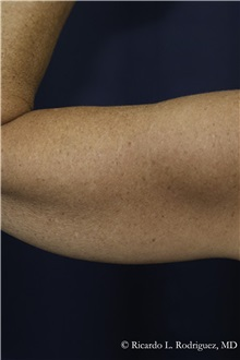 Liposuction Before Photo by Ricardo Rodriguez, MD; Lutherville-Timonium, MD - Case 32635