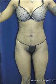 Liposuction After Photo by Ricardo Rodriguez, MD; Lutherville-Timonium, MD - Case 32636