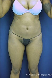 Liposuction Before Photo by Ricardo Rodriguez, MD; Lutherville-Timonium, MD - Case 32636