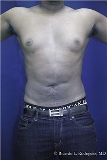 Liposuction After Photo by Ricardo Rodriguez, MD; Lutherville-Timonium, MD - Case 32638