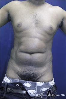Liposuction Before Photo by Ricardo Rodriguez, MD; Lutherville-Timonium, MD - Case 32638