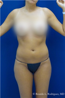 Liposuction After Photo by Ricardo Rodriguez, MD; Lutherville-Timonium, MD - Case 32639