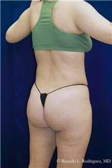 Liposuction After Photo by Ricardo Rodriguez, MD; Lutherville-Timonium, MD - Case 32645