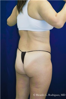 Liposuction Before Photo by Ricardo Rodriguez, MD; Lutherville-Timonium, MD - Case 32645