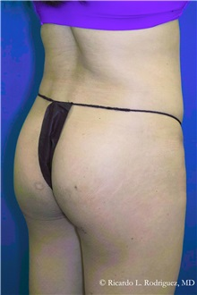 Liposuction After Photo by Ricardo Rodriguez, MD; Lutherville-Timonium, MD - Case 32646