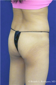 Liposuction Before Photo by Ricardo Rodriguez, MD; Lutherville-Timonium, MD - Case 32646