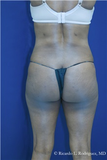 Buttock Implants After Photo by Ricardo Rodriguez, MD; Lutherville-Timonium, MD - Case 32656