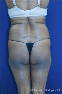 Buttock Implants Before Photo by Ricardo Rodriguez, MD; Lutherville-Timonium, MD - Case 32656