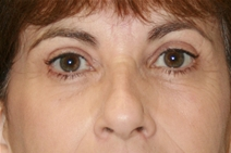 Eyelid Surgery After Photo by Jane Weston, MD; Menlo Park, CA - Case 21455
