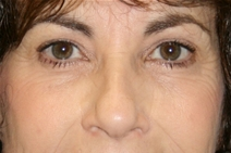 Eyelid Surgery Before Photo by Jane Weston, MD; Menlo Park, CA - Case 21455