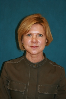 Facelift After Photo by Jane Weston, MD; Menlo Park, CA - Case 21460