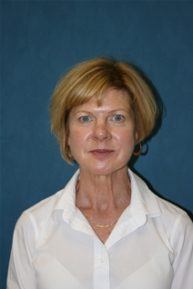 Facelift Before Photo by Jane Weston, MD; Menlo Park, CA - Case 21460