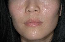 Dermal Fillers Before Photo by Francis(Frank) Rieger, MD; Tampa, FL - Case 8592