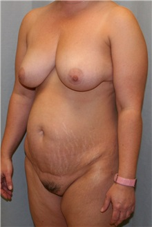 Tummy Tuck Before Photo by Meegan Gruber, MD; Tampa, FL - Case 9007