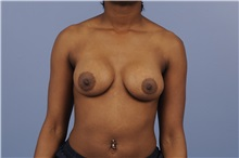Breast Augmentation After Photo by Trent Douglas, MD; Greenbrae, CA - Case 31393