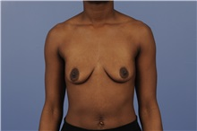 Breast Augmentation Before Photo by Trent Douglas, MD; Greenbrae, CA - Case 31393