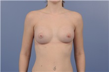 Breast Augmentation After Photo by Trent Douglas, MD; Greenbrae, CA - Case 31394