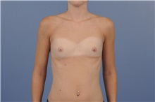 Breast Augmentation Before Photo by Trent Douglas, MD; San Diego, CA - Case 31394