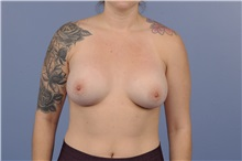Breast Augmentation After Photo by Trent Douglas, MD; San Diego, CA - Case 31395