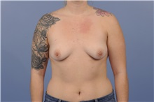 Breast Augmentation Before Photo by Trent Douglas, MD; San Diego, CA - Case 31395