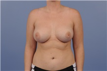 Breast Augmentation After Photo by Trent Douglas, MD; San Diego, CA - Case 31397