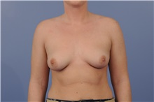 Breast Augmentation Before Photo by Trent Douglas, MD; San Diego, CA - Case 31397