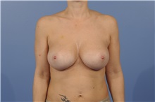 Breast Augmentation After Photo by Trent Douglas, MD; San Diego, CA - Case 31399