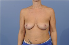 Breast Augmentation Before Photo by Trent Douglas, MD; San Diego, CA - Case 31399