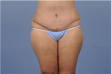 Tummy Tuck After Photo by Trent Douglas, MD; San Diego, CA - Case 31400