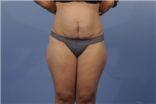 Tummy Tuck Before Photo by Trent Douglas, MD; San Diego, CA - Case 31400