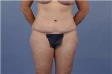 Tummy Tuck After Photo by Trent Douglas, MD; San Diego, CA - Case 31401