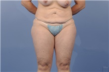 Tummy Tuck Before Photo by Trent Douglas, MD; San Diego, CA - Case 31401