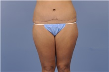 Tummy Tuck After Photo by Trent Douglas, MD; San Diego, CA - Case 31402