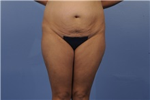 Tummy Tuck Before Photo by Trent Douglas, MD; San Diego, CA - Case 31402