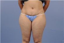 Tummy Tuck After Photo by Trent Douglas, MD; San Diego, CA - Case 31403