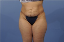 Tummy Tuck Before Photo by Trent Douglas, MD; San Diego, CA - Case 31403