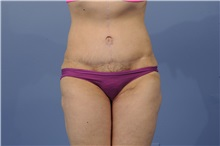 Tummy Tuck After Photo by Trent Douglas, MD; San Diego, CA - Case 31404
