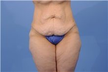 Tummy Tuck Before Photo by Trent Douglas, MD; San Diego, CA - Case 31404