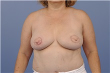 Breast Reconstruction After Photo by Trent Douglas, MD; San Diego, CA - Case 31406