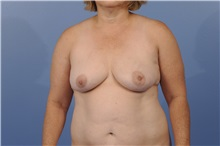 Breast Reconstruction Before Photo by Trent Douglas, MD; San Diego, CA - Case 31406