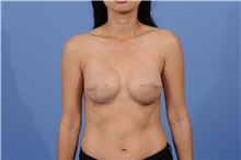 Breast Reconstruction After Photo by Trent Douglas, MD; San Diego, CA - Case 31407