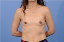 Breast Reconstruction Before Photo by Trent Douglas, MD; San Diego, CA - Case 31407