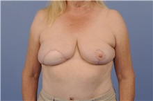 Breast Reconstruction After Photo by Trent Douglas, MD; San Diego, CA - Case 31408