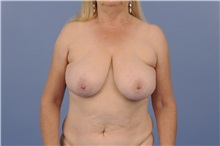 Breast Reconstruction Before Photo by Trent Douglas, MD; San Diego, CA - Case 31408